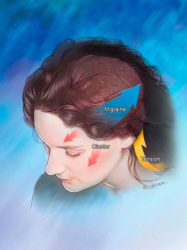 Acupuntura para Enxaqueca em Sp Saúde - Acupuntura Auricular