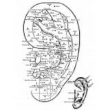 acupuntura auricular