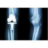 acupuntura para artrose em sp Saúde