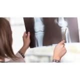 acupuntura para artrose Aeroporto