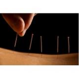 acupuntura que aceita convênio Ipiranga