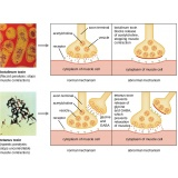 botox para dor muscular Moema