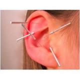 clínica de acupuntura auricular em sp Jabaquara