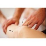 clínica de acupuntura para enxaqueca crônica Ibirapuera