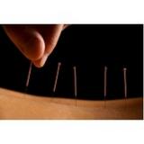 clínica de acupuntura para dor de cabeça frontal