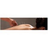 clínicas de acupuntura para dor de cabeça Cursino