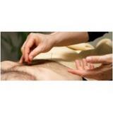 médicos acupunturistas Moema