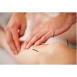 médicos de acupuntura sistêmica Aeroporto
