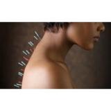 onde encontro clínica de acupuntura para insonia Vila Mariana