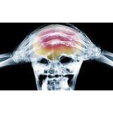 quanto custa acupuntura para dor de cabeça Ipiranga