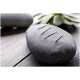 valor de acupuntura que aceita convênio Saúde