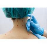valor de aplicação de botox para dor Vila Clementino