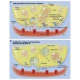 valor de botox para tratamento da espasticidade Itaim Bibi