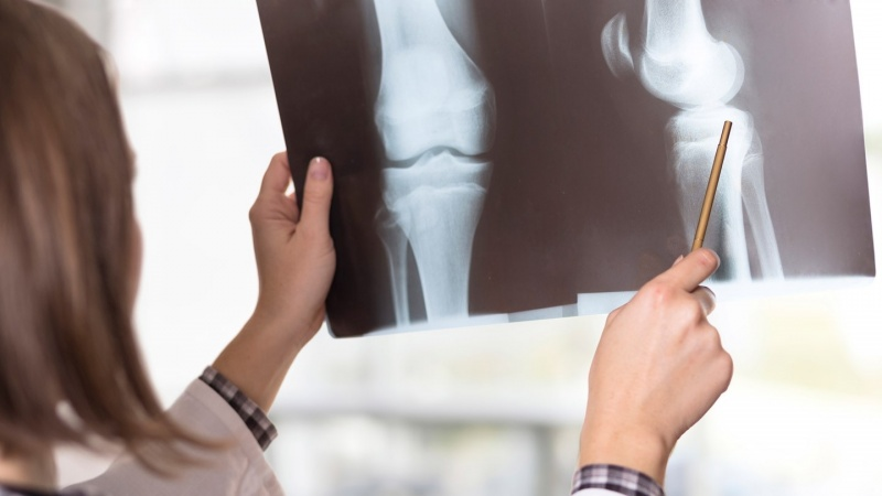 Valor de Acupuntura para Artrose Saúde - Acupuntura para Ansiedade