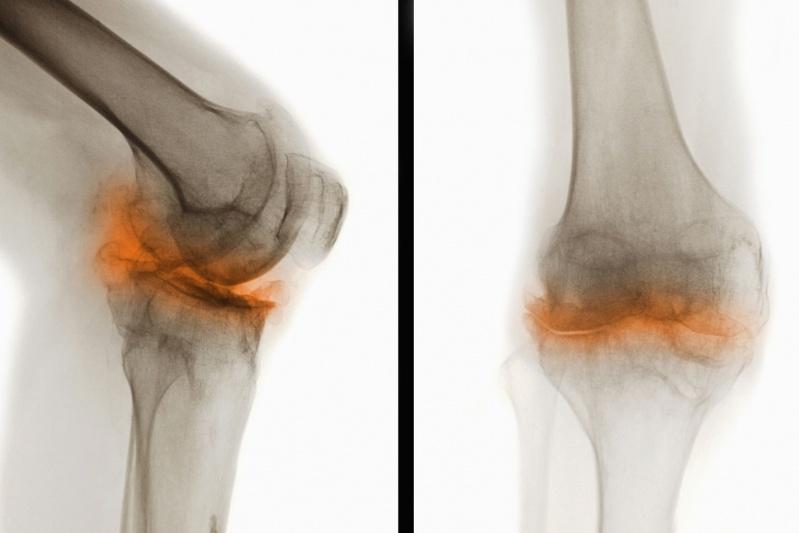 Acupuntura para Artrose Preço Brooklin - Acupuntura para Artrose