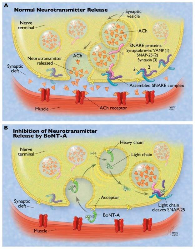Botox para Tratamento da Espasticidade Brooklin - Toxina Botulínica para Distonia