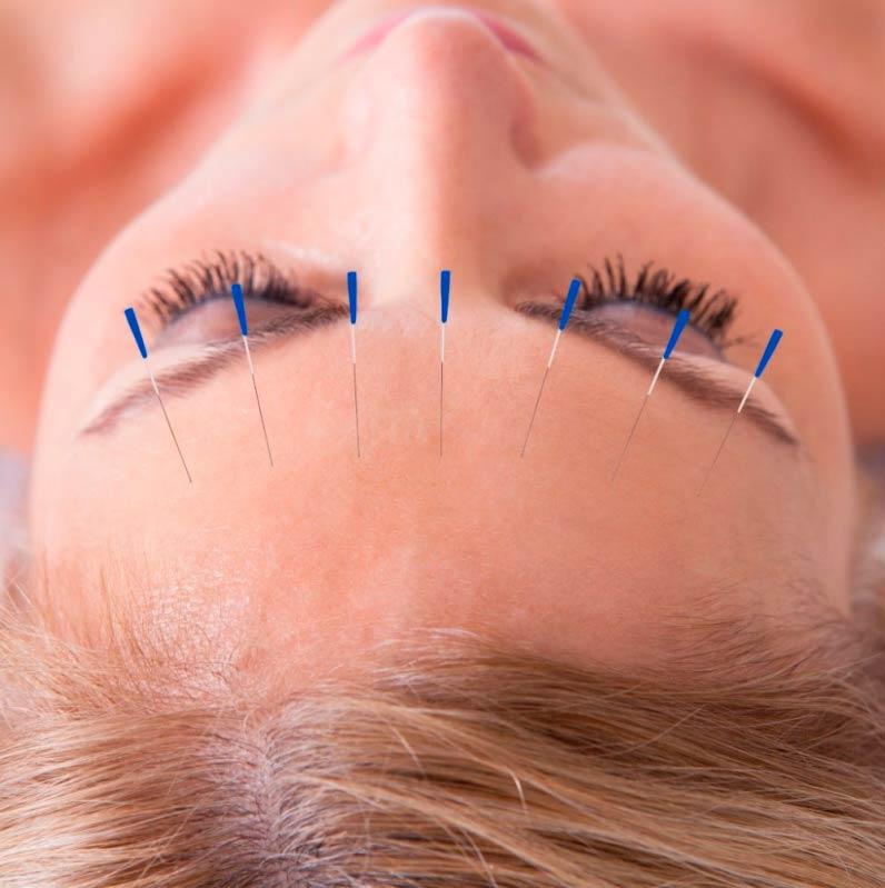 Clínica de Acupuntura para Dor em Sp Saúde - Clínica de Acupuntura Auricular