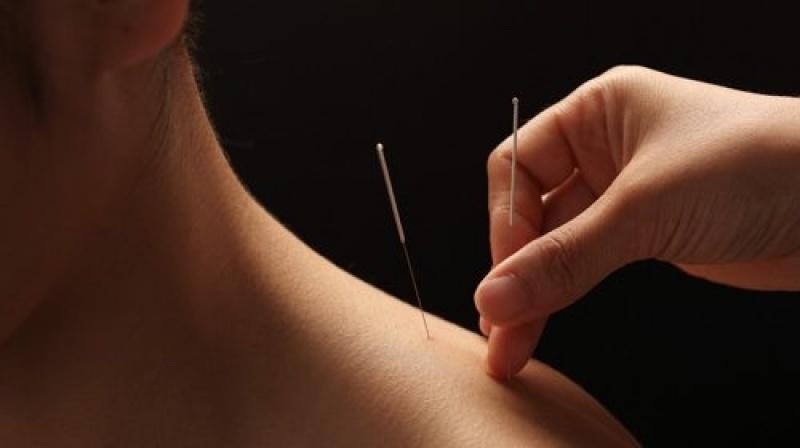 Clínicas de Acupuntura para Ansiedade Cursino - Clínica de Acupuntura Auricular