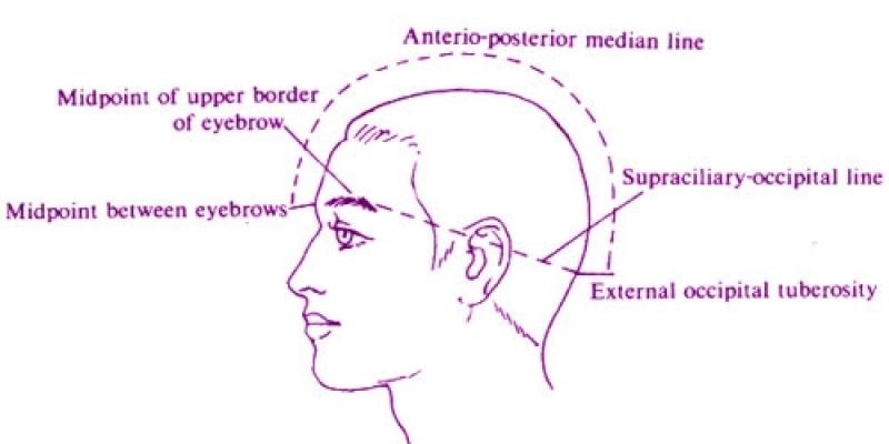 Craniopuntura para Depressão em Sp Ipiranga - Craniopuntura para Labirintite