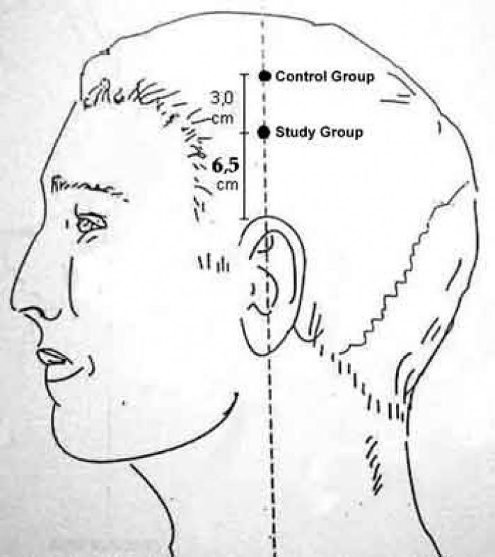 Craniopuntura para Dor de Cabeça Parque Ibirapuera - Craniopuntura para Dor de Cabeça Tensional