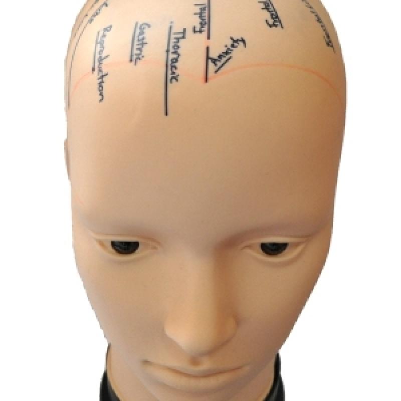 Craniopuntura para Sinusite em Sp Ipiranga - Craniopuntura para Labirintite
