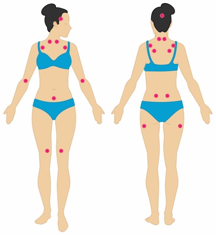 Fisiatra para Fibromialgia Local Vila Mariana - Clínica Fisiatra Medico