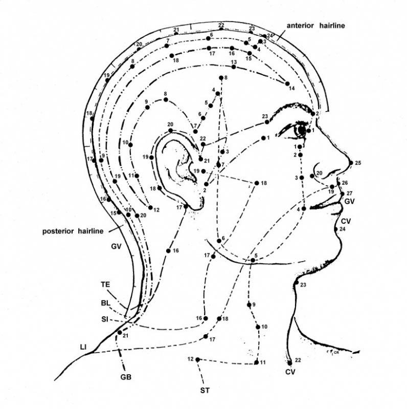 Onde Encontrar Tratamento para Dor com Craniopuntura Saúde - Craniopuntura para Enxaqueca Crônica