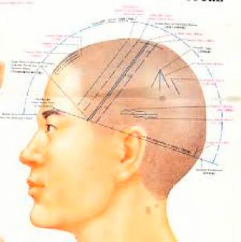 Quanto Custa Craniopuntura para Dor de Cabeça Ibirapuera - Craniopuntura para Dor de Cabeça Frontal