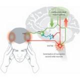 acupuntura para dor de cabeça tensional em sp Itaim Bibi