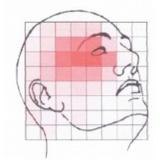acupuntura para dor de cabeça Moema