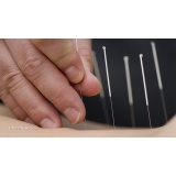 acupuntura que aceita convênio preço Ibirapuera