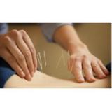 clínica de acupuntura para dor em sp Saúde