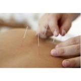 clínica de acupuntura para dor Parque Ibirapuera