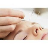 clínica de acupuntura para insonia em sp Vila Clementino