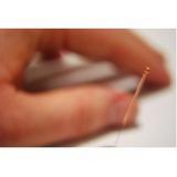 clínica de acupuntura para dor