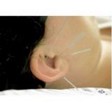 clínicas de acupuntura para atm Campo Belo