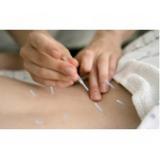 onde encontrar clínica de acupuntura para dor Aeroporto