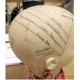 quanto custa craniopuntura para sinusite Vila Mariana
