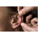 valor de acupuntura auricular Cursino