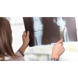 valor de acupuntura para artrose Cursino