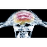 valor de acupuntura para dor de cabeça Vila Clementino