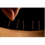 valor de acupuntura que aceita convênio Cursino
