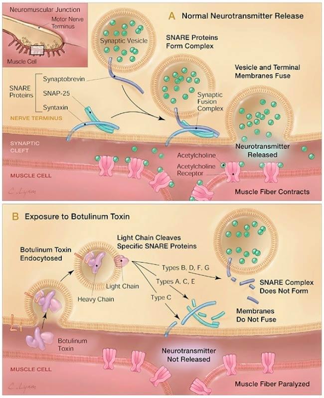 Toxina Botulínica para Dor Moema - Toxina Botulínica para Distonia