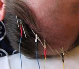 Tratamento para Dor com Craniopuntura Vila Mariana - Craniopuntura para Labirintite