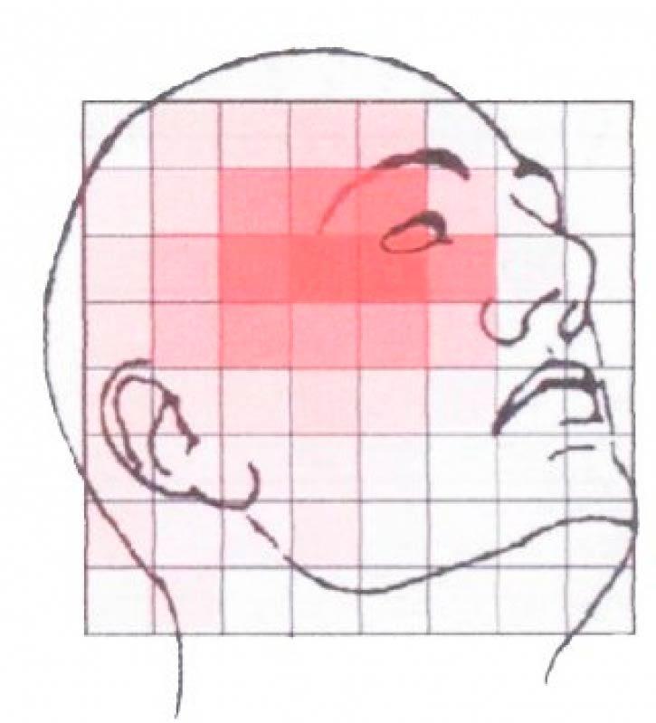 Valor de Acupuntura para Dor de Cabeça Jabaquara - Acupuntura Que Aceita Convênio